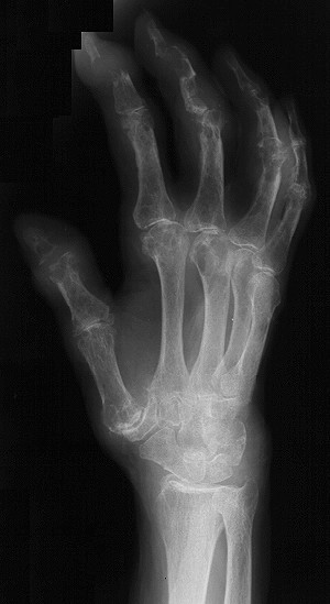 right_hand2_oblique.jpg