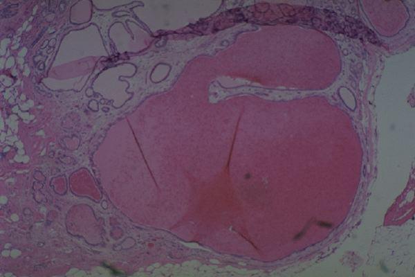 Hamartoma, a benign tumor